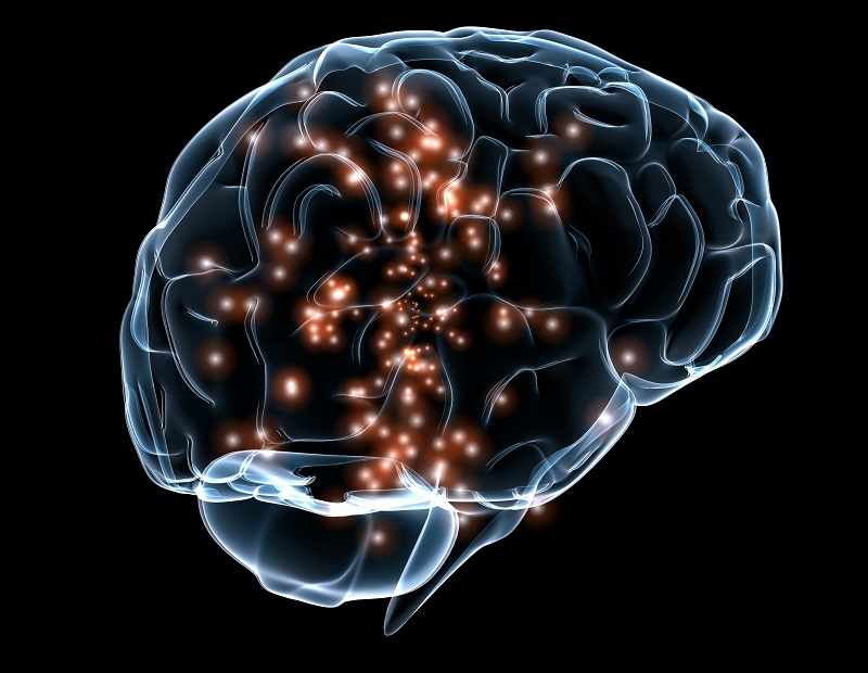 BrainLight - http://upload.wikimedia.org/wikipedia/commons/c/c3/Neuronal_activity_DARPA.jpg